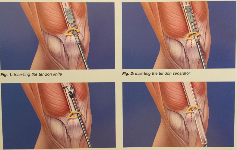 tratamentul hemartrozei genunchiului în urma leziunilor