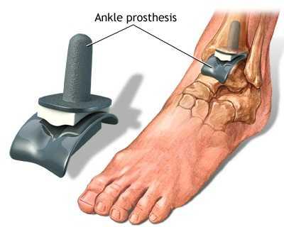 artroza tratamentului piciorului superior