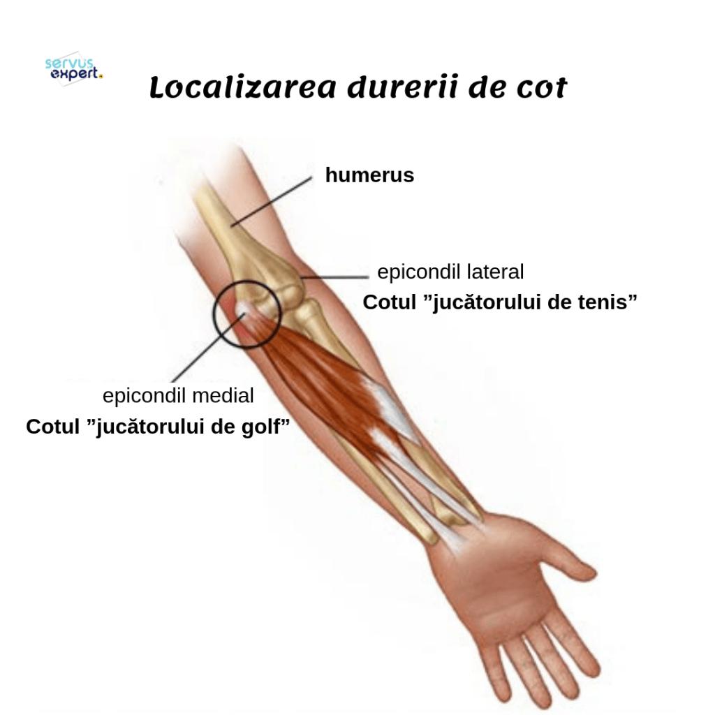 durere la brațul stâng în articulația cotului