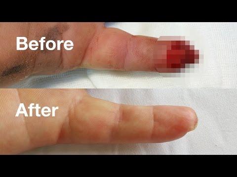 Bump pe articulația genunchiului din spate. Medicina regenerativa a cartilajului | buzauplay.ro