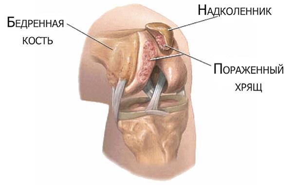 Pentru artroza preparatelor articulațiilor genunchiului. Navigare principală