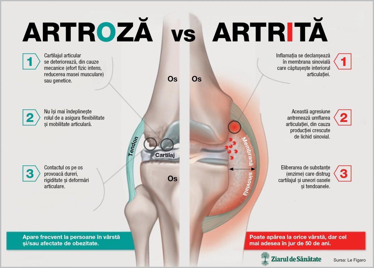 articulare artrita artroza