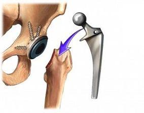 Proteza totală de şold - Concierge Medical | Blog
