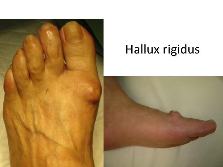 dureri articulare la degetul de la piciorul drept