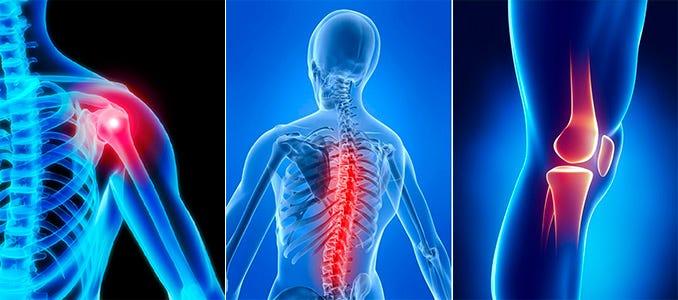 Este posibil să circulați cu artroza articulațiilor durere după întinderea articulației șoldului