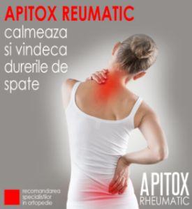 Care este cel mai bun lucru pentru durerea articulațiilor musculare