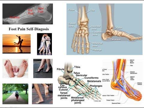 ameliorați inflamația artrozei genunchiului cum se poate elimina edemul articular cu artrita