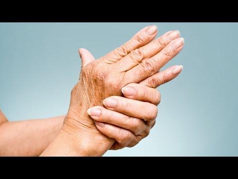 simptomele și tratamentul artrozei degetului osteochondroza gradului 3 al articulației genunchiului