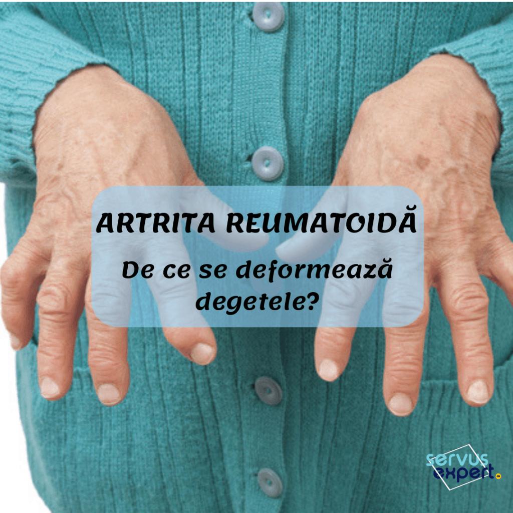 vitamine articulare pentru artrita reumatoidă medicament pentru a elimina durerile de genunchi
