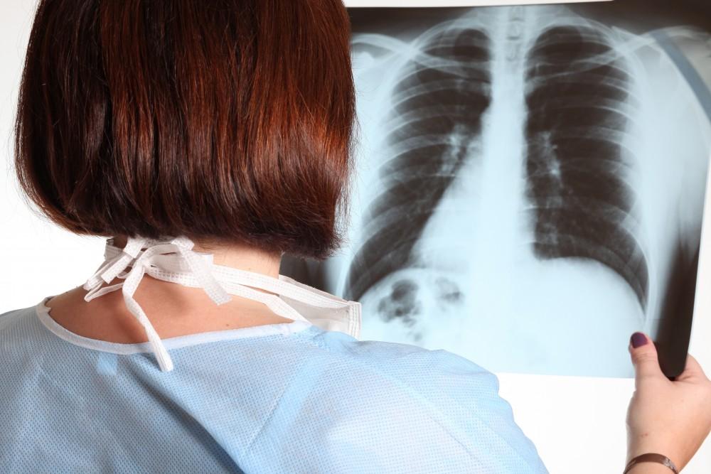 tratamentul fibrozei articulare