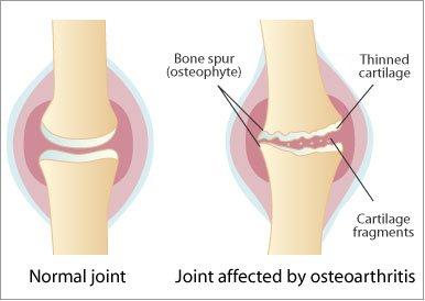Artroza secundară a articulațiilor mari ce este