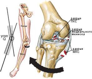 deteriorarea ligamentului genunchiului închis artroza bilaterală a genunchiului