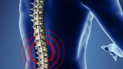 tratament post-traumatic al inflamației articulare tratament pentru displazia de șold la adulți