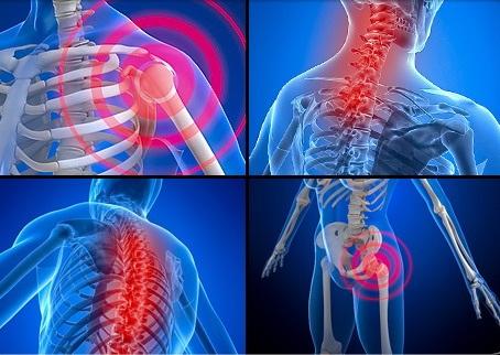 recenzii ale bolilor osoase și articulare