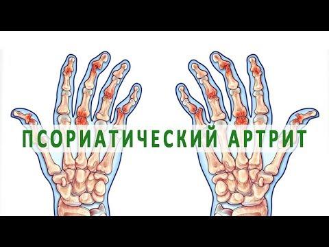 cum să tratezi o articulație cu perie