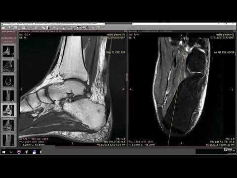 Denumirea unguentului artralgia