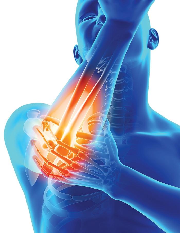 inflamație nespecifică a articulațiilor piciorului cum să tratezi artrita pe articulațiile degetelor