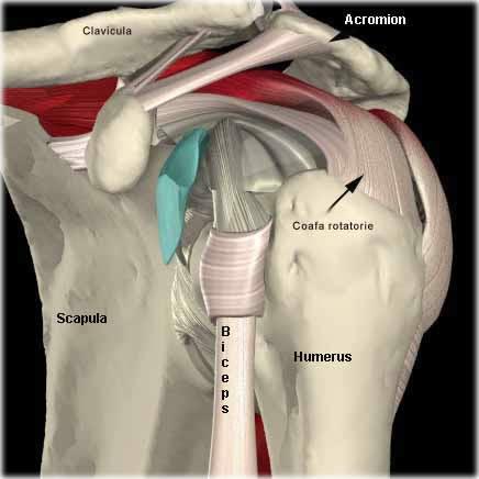 injecții de durere la șold