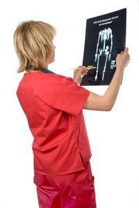 Recenzii ale tratamentului osteoporozei la șold