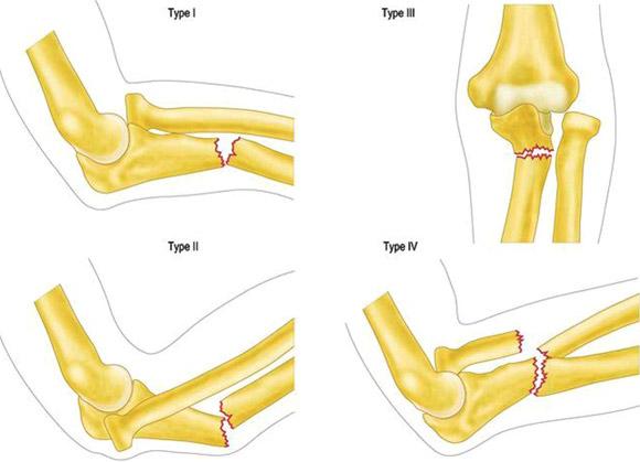 Tratamentul hematomului la articulația cotului - avagardens.ro