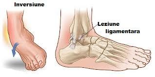 refacerea articulației gleznei după ruperea ligamentelor inflamația articulației piciorului tratată