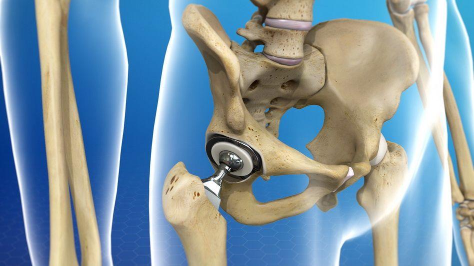 artroza șoldului la tineri gonartroza articulațiilor genunchiului cum să tratezi
