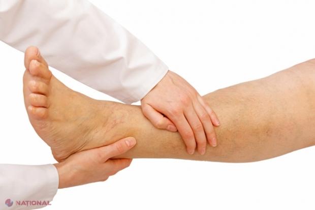 durere în articulațiile degetelor picioarelor