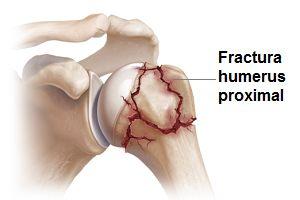 tratamentul fracturilor de umăr cu deplasare