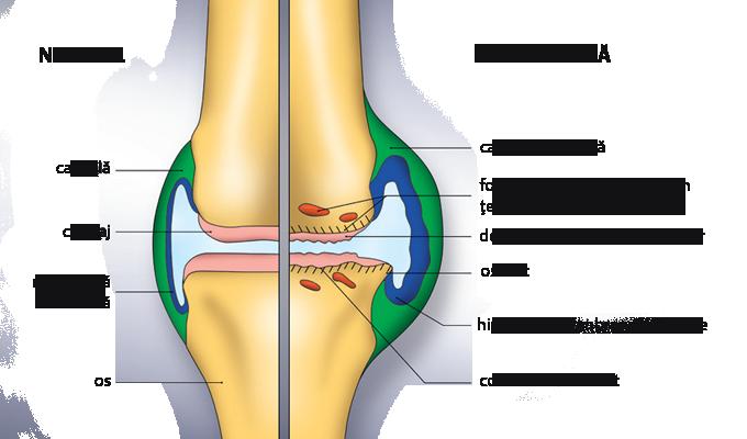 Crucearosies1: efuzie a genunchiului durerea articulară atunci când rulați piciorul în jos