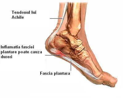 tratamentul durerii articulare cu sare amelioreaza durerea in articulatiile picioarelor