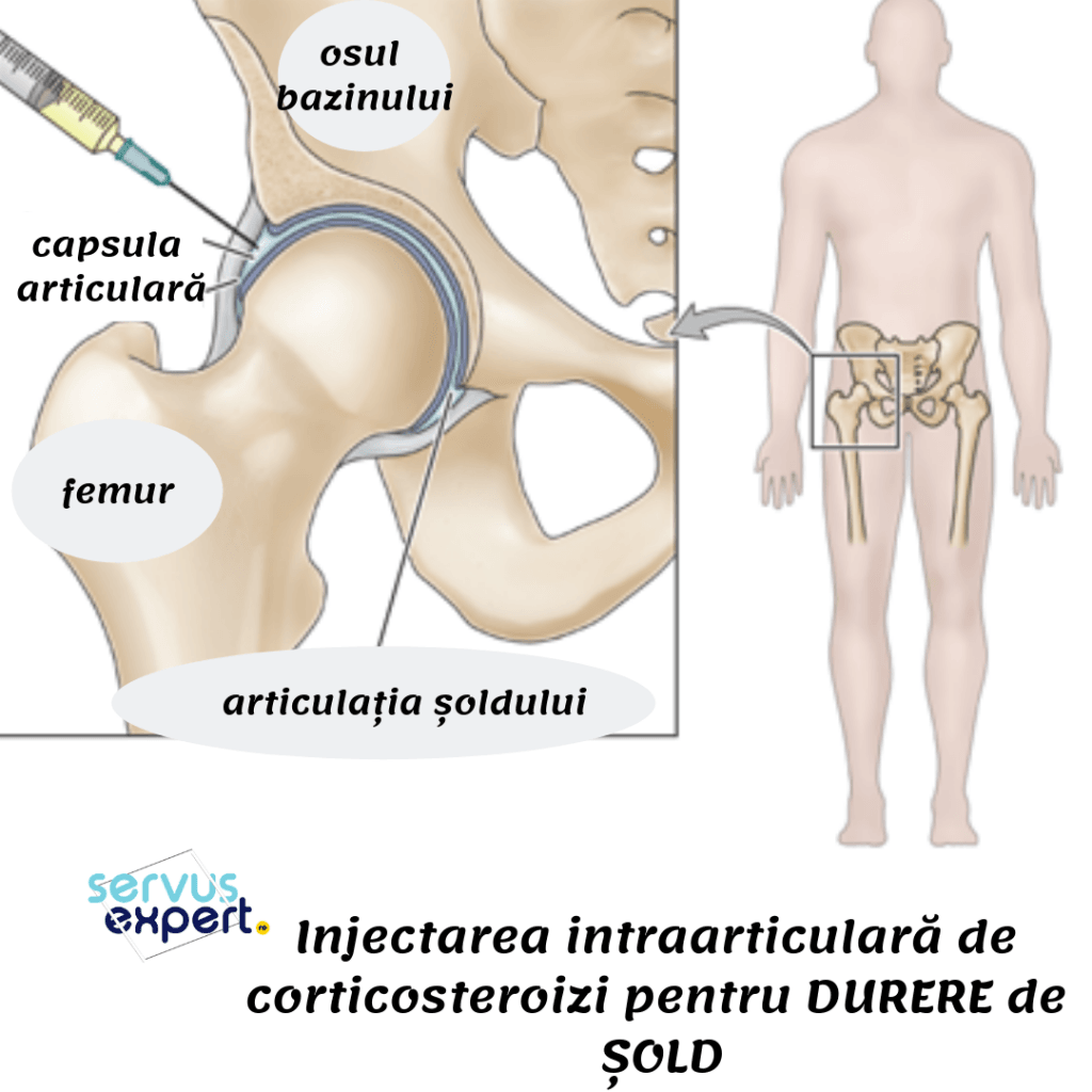 blocarea injecției pentru durerea articulației șoldului
