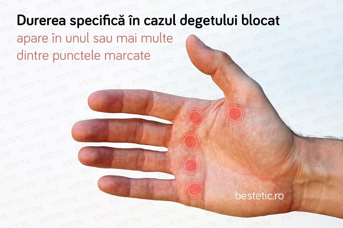 durere la încheietura mâinii la care medic
