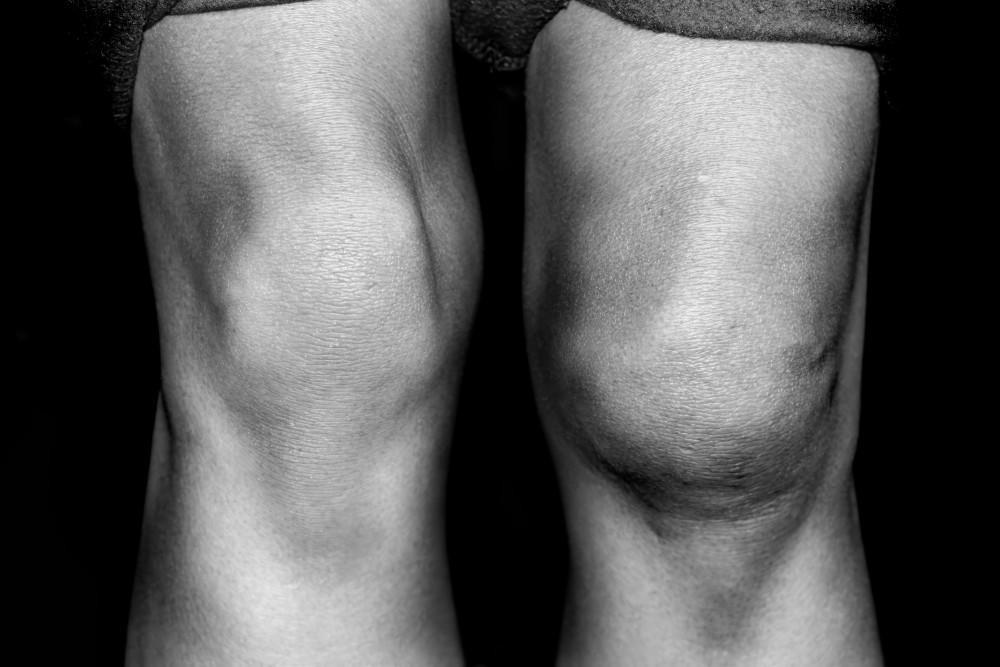 osteofite dureri articulare injecții homeopate pentru tratamentul artrozei