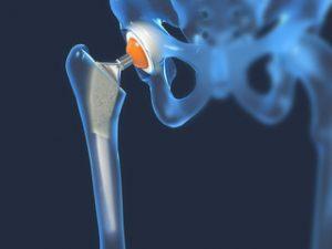 ambulanță pentru artroza articulației șoldului