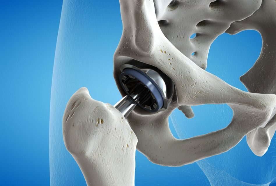 Leziunile degenerative ale articulației coxofemurale - Coxartroza