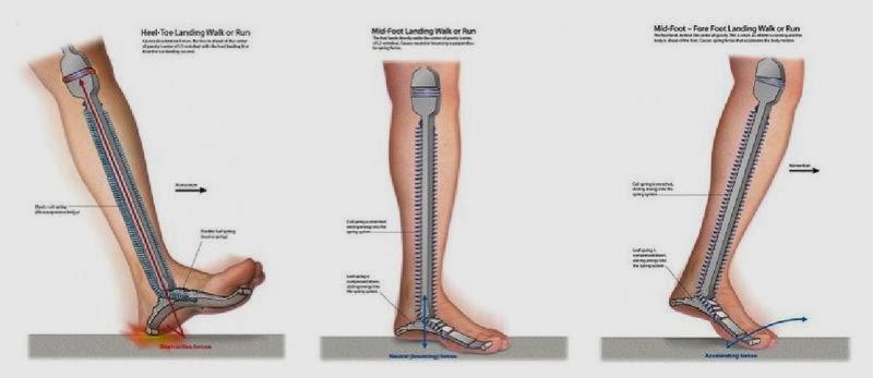 Dacă articulațiile doare la alergare, Durerile de genunchi: simptome, cauze si tratament | Medlife