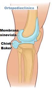 Durerea genunchiului provoacă chistul brutarului. Chisturi de brutar