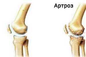 toate semnele de artroză a genunchiului gel de phidia hialgan în articulație