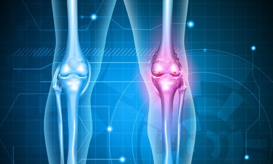 UHF în tratamentul artrozei genunchiului