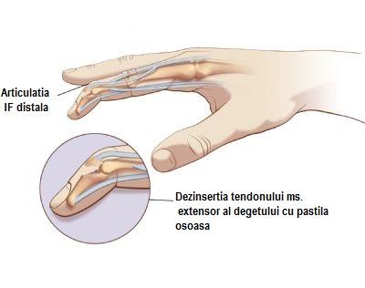 cum să tratezi o articulație pe vârful degetului