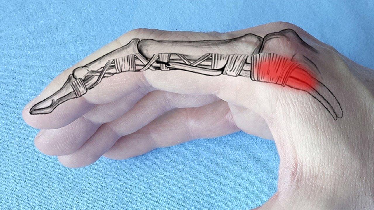 Dureri ascuțite în articulațiile degetelor mâinii provoacă