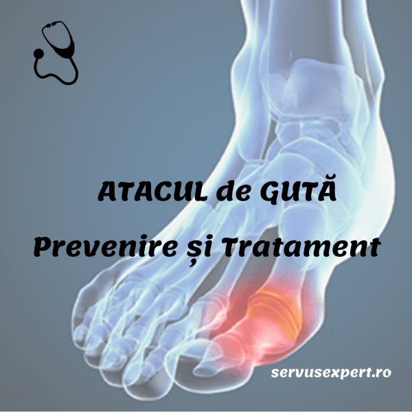 TRATAMENT GUTA. Remedii pentru durere și inflamație - Servus Expert