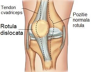 Durere de Genunchi - Cauze, Tratament & Remedii Naturiste, Cum să tratezi deplasarea genunchiului