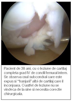 tratamentul articulației gălbenușului Artroza de gradul 3 a articulației umărului
