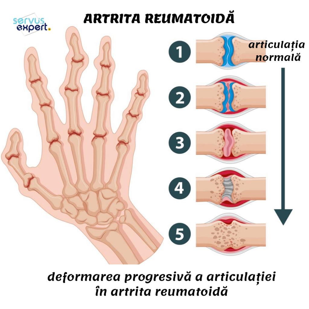 artrita artrita tratamentul articulațiilor degetelor