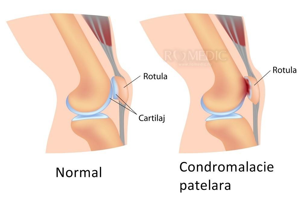 umflarea articulației genunchiului