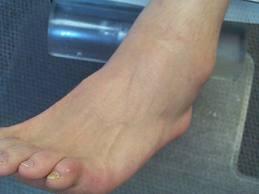 Unguente pentru ruperea ligamentelor gleznei