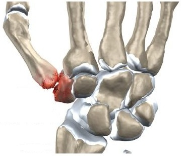 dureri de șold care radiază până la picior