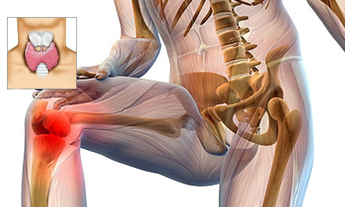 artroza articulației cotului 2-3 grade