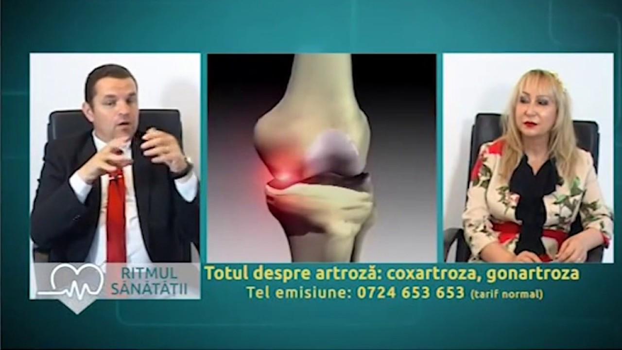 tratamentul artrozei în kmv